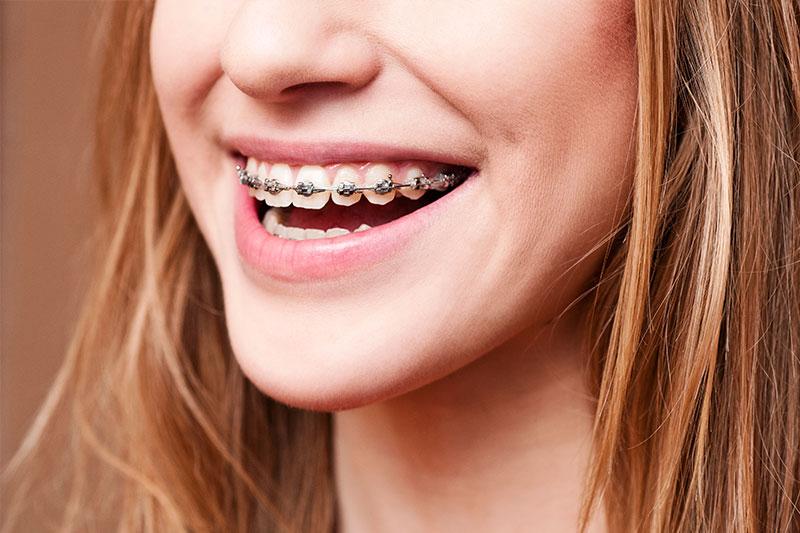 orthodontic treatment creve coeur