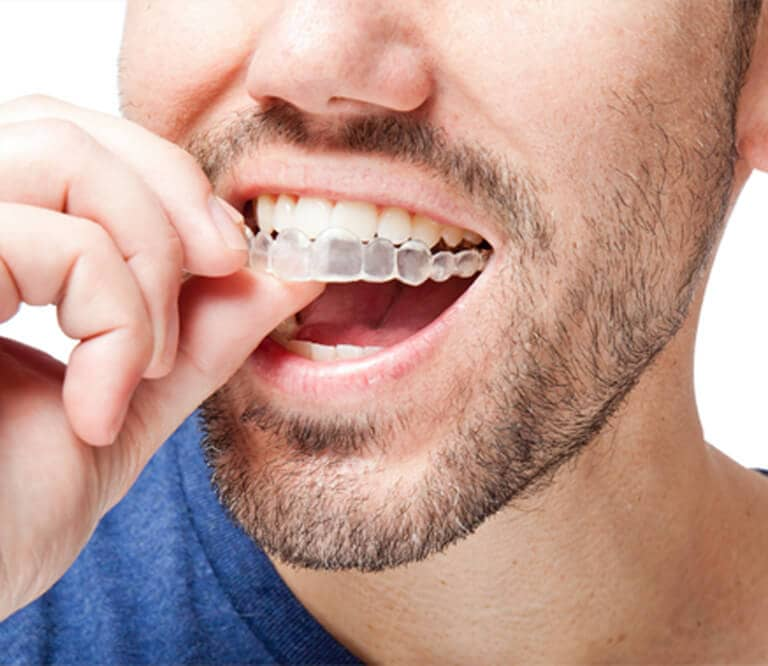 Invisalign Special Offer in Creve Coeur, Near St. Louis MO