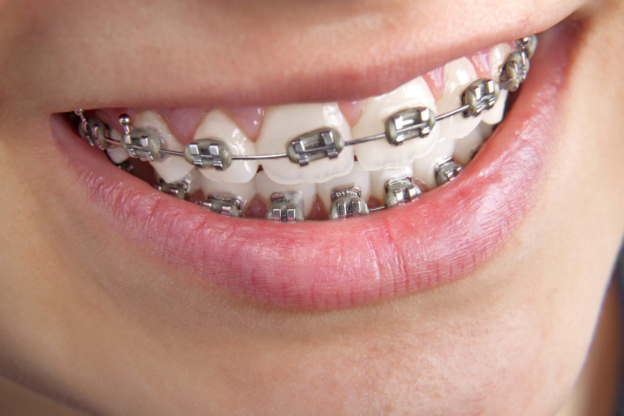teen orthdontics