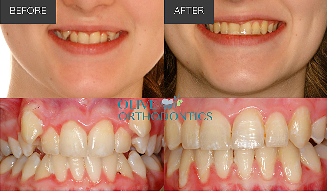 orthodontist before after photos St Louis MO